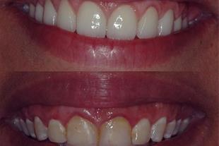 انواع روکش دندان ، لمینت ، کامپوزیت و عصب کشی - 1