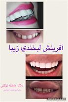 لمینت کامپوزیتی دندان - 1