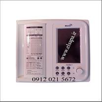 نوار قلب یا الکترو کاردیوگراف - 1