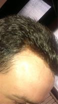 ترمیم مو آرامیس - کاشت مو