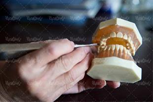 مولاژ عاج دندان با نمایش تاج