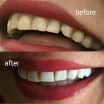 پر کردن دندان ، روکش دندان