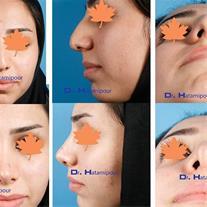 فوق تخصص جراحی پلاستیک و زیبایی دکتر حاتمی پور