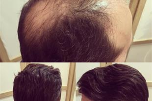 ترمیم و پرپشت کردن مو