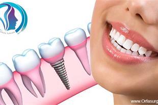 ایمپلنت دندان در اصفهان