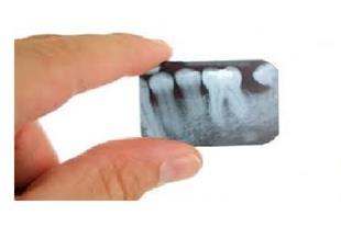 خرید انواع فیلم های محلول مصرف شده رادیولوژی