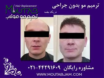 ترمیم مو در یک جلسه بدون جراحی - 1
