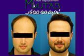 کاشت و ترمیم مو بدون جراحی