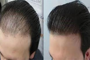 مرکز کاشت مو  و زیبایی ((آلفا))