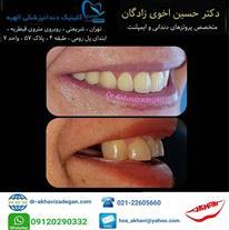 ایمپلنت دندان - پروتز دندانی