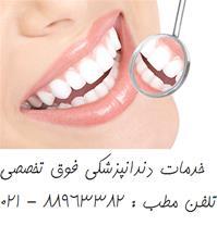 بهترین دندانپزشکی مرکز تهران عصب کشی دندان