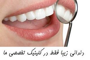 قیمت روکش دندان بهترین متخصص دندانپزشکی زیبایی