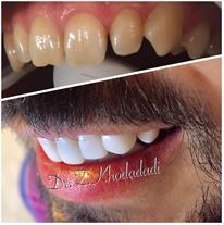 طراحی لبخند دندانپزشکی نکو