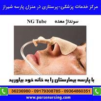 تعویض لوله غذایی بیمار ان جی NG در شیراز