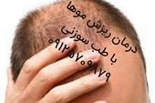 درمان ریزش مو با طب سوزنی