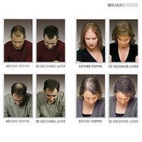 پودر حجم دهنده موی سر مورست - Morast (Mzkala)