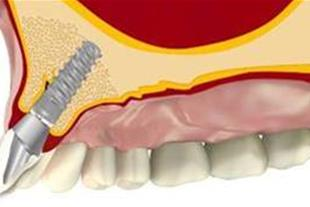 دندانپزشکی زیبایی ارتودنسی دکتر نوروزی