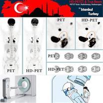 PET-CT و PET Scan (رادیوتراپی - پرتودرمانی) در ترک