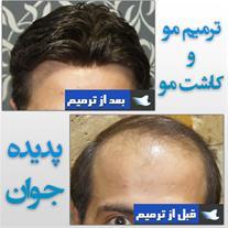کاشت مو فاقد رشد بر روی کورتکسهای نانو hair pice