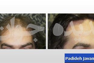 قیمت پیوند موی سر - پیوند مو به روش HRP