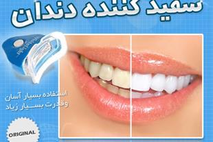 دستگاه سفیدکننده دندان Whitelight