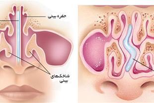 مولاژ بینی بانمایش شاخکها و استخوان بینی