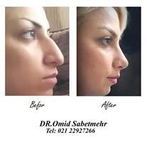 دکتر امید ثابت مهر جراح زیبایی بینی فک و صورت