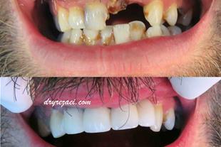 دندانپزشکی زیبایی تبریز