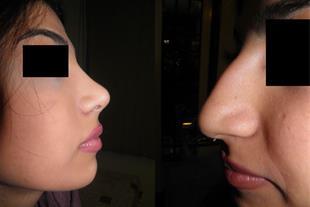 جراحی بینی - راینو پلاستی - دکتر مسعود صحرائیان