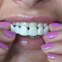 لابراتوار دندانسازی - تعمیر دست دندان پروتز دندان