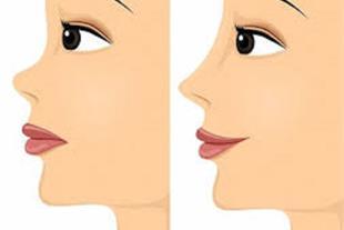 کلینیک جراحی بینی در میرداماد